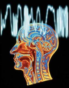 epilepsi_157942946